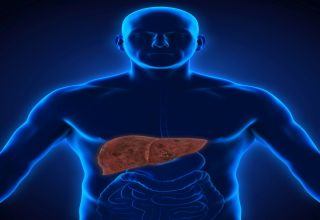Non-alcoholic_fatty_liver_disease